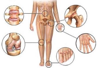 Лечение артроза тазобедренного сустава самара соединены суставом