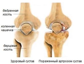плечевой артроз отзывы
